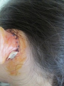 Laos ear surgery fundraiser